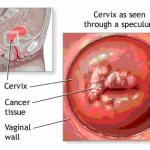 Kanker Servic